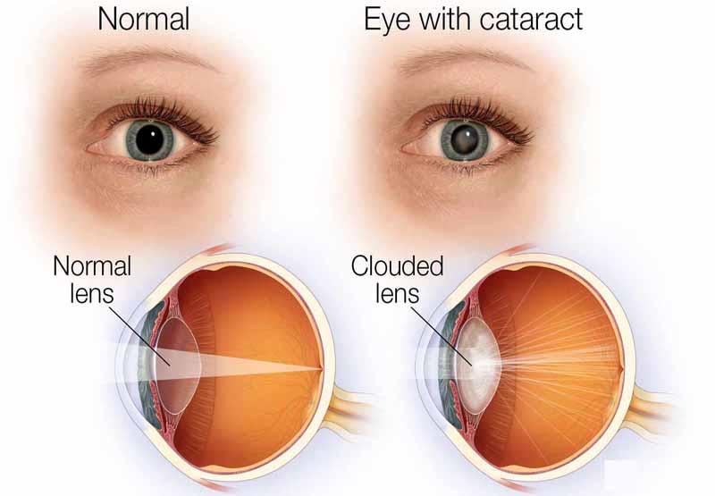 Acetylcholine giúp làm co đồng tử mắt sau phẫu thuật đục thủy tinh thể