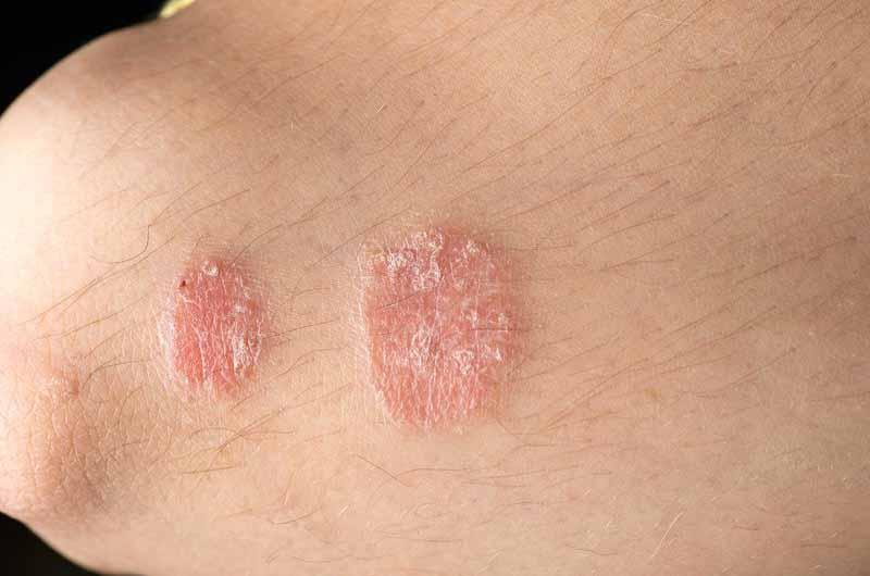 Acitretin là thuốc dùng trong điều trị bệnh vảy nến nặng