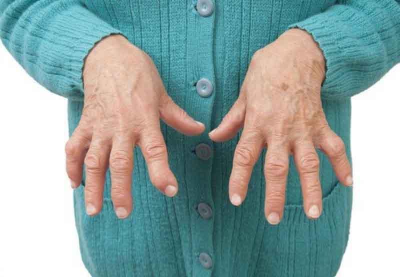 Hãy báo cho bác sĩ biết về tình trạng sức khỏe của bạn, trong đó có viêm khớp dạng thấp
