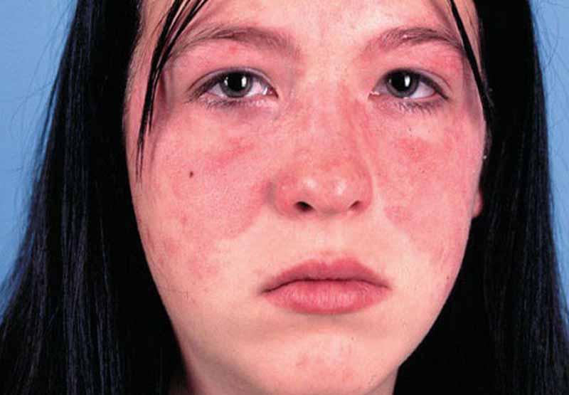 Lupus ban đỏ hệ thống là một tác dụng phụ nghiêm trọng