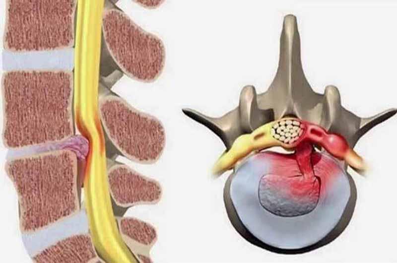 Người bệnh bị thoát vị đĩa đệm cũng xuất hiện những cơn đau vai gáy