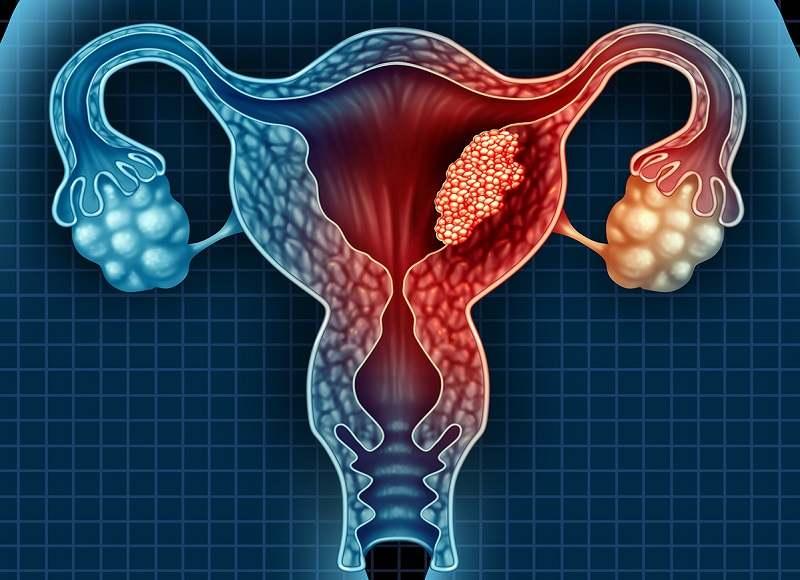 Bệnh viêm phần phụ ở nữ giới