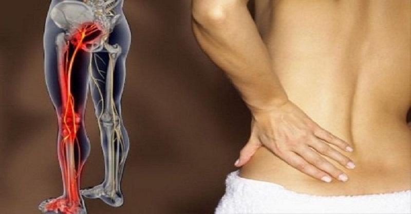 Đau từ thắt lưng qua mông xuống đùi đến bàn chân là dấu hiệu bệnh thần kinh tọa điển hình