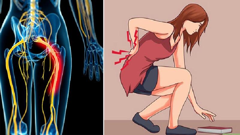 Hạn chế vận động là triệu chứng đau thần kinh tọa thường gặp