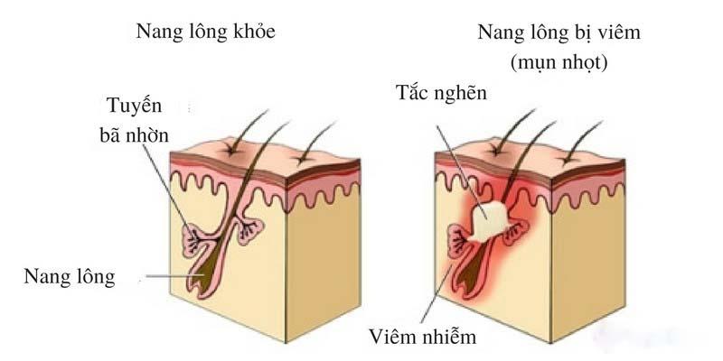Lỗ chân lông bị tắc nghẽn dẫn đến viêm nang lông
