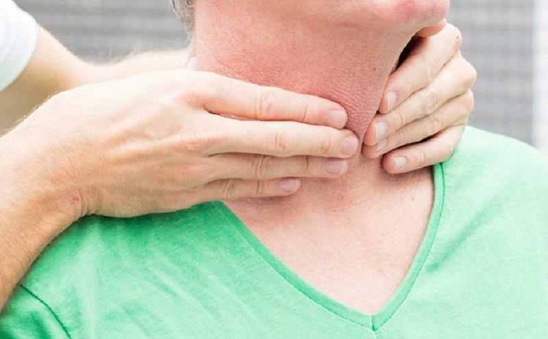 Mắc bệnh về tuyến giáp có thể dẫn đến ngứa da