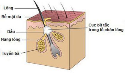 Nguyên nhân viêm nang lông
