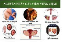 Nguyên nhân viêm vùng chậu