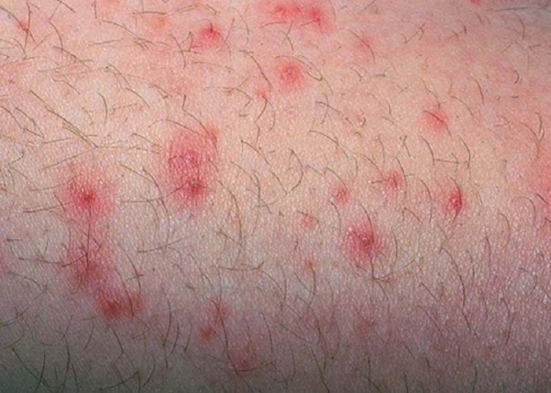 Nổi mẩn đỏ là dấu hiệu viêm nang lông điển hình