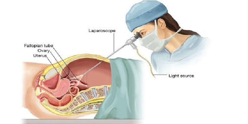Nội soi ổ bụng là phương pháp xét nghiệm viêm phần phụ phổ biến