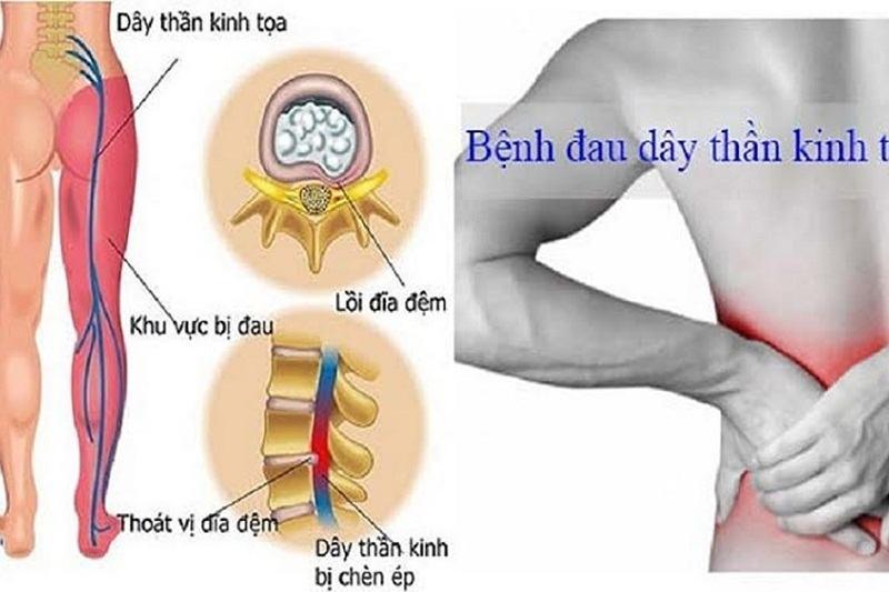 Thoát vị đĩa đệm là nguyên nhân gây đau thần kinh tọa phổ biến