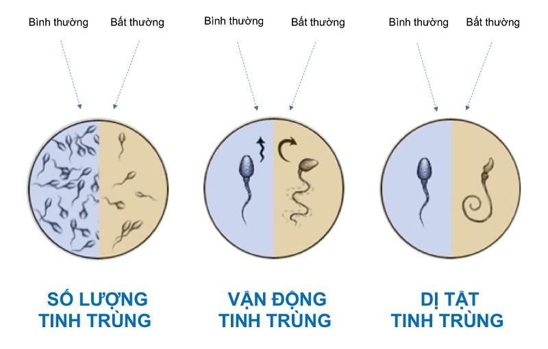 Tinh trùng yếu có dấu hiệu như thế nào?