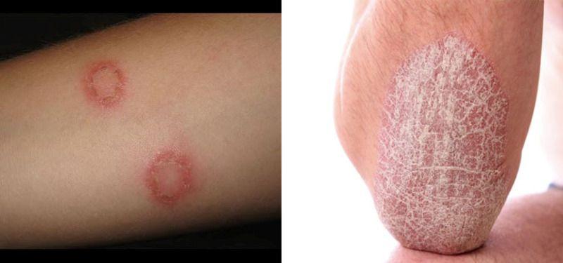 Vùng da bị bong vảy trắng là những biểu hiện đầu tiên của bệnh hắc lào