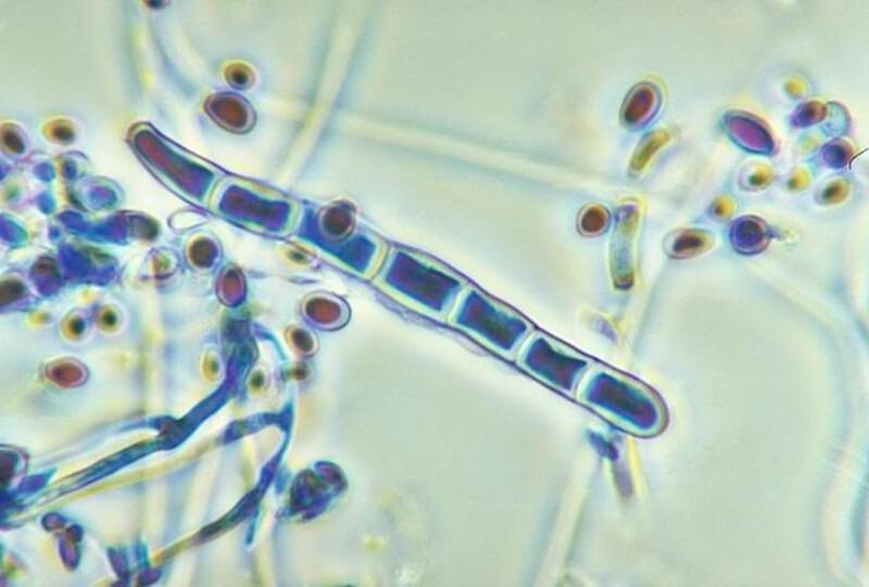 Sử dụng kính hiển vi để soi vi nấm sẽ cho kết quả chính xác nhất nếu nhiễm hắc lào