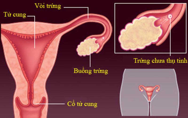 Trứng thụ tinh bao lâu thì biết có thai phụ thuộc vào thời gian phôi thai di chuyển tới tử cung
