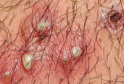 Viêm nang lông vùng kín