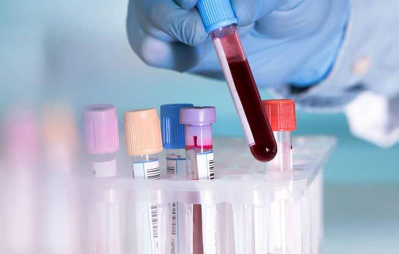 Xét nghiệm máu giúp phát hiện sớm việc có thai