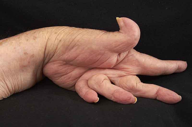 Biến dạng khớp là triệu chứng nghiêm trọng nhất của viêm khớp