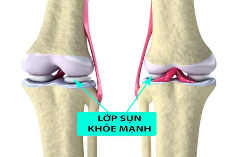 Biểu hiện bệnh thường gặp là sưng tại vị trí khớp viêm