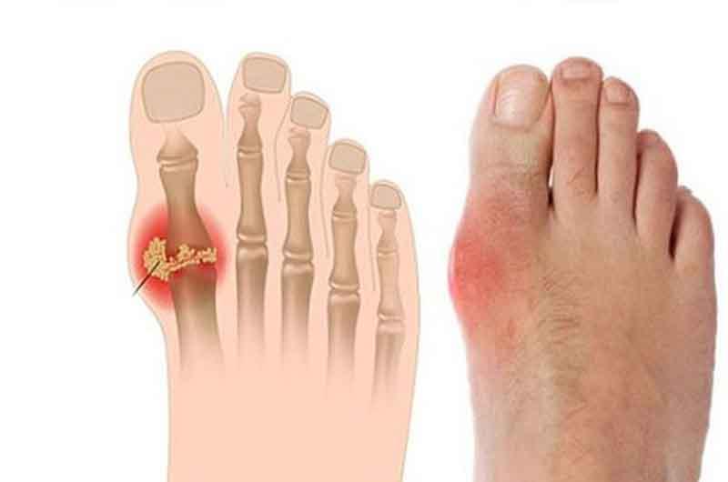 Viêm khớp do một số bệnh nhiễm trùng, trong đó có gout