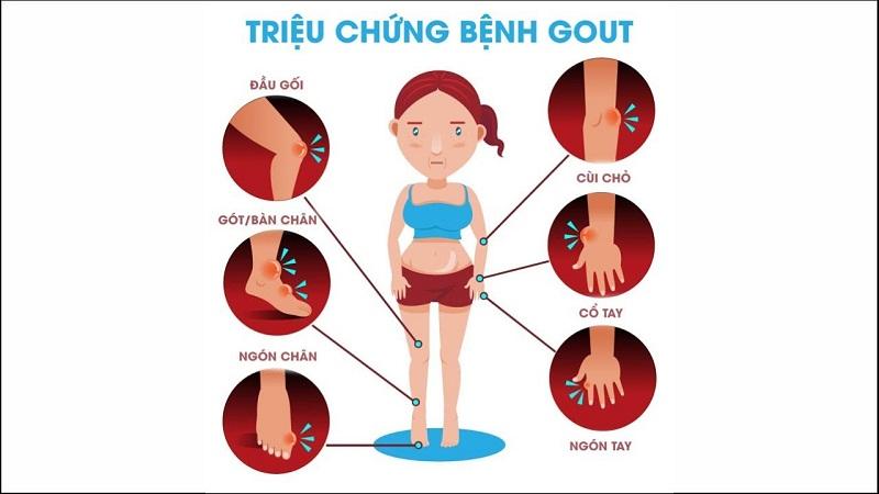 Bệnh gout có thể xảy ra ở nhiều vị trí khớp ở tay và chân