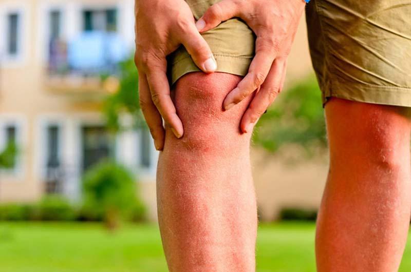 Bệnh viêm khớp gối là tình trạng sưng, tổn thương tại khớp gối