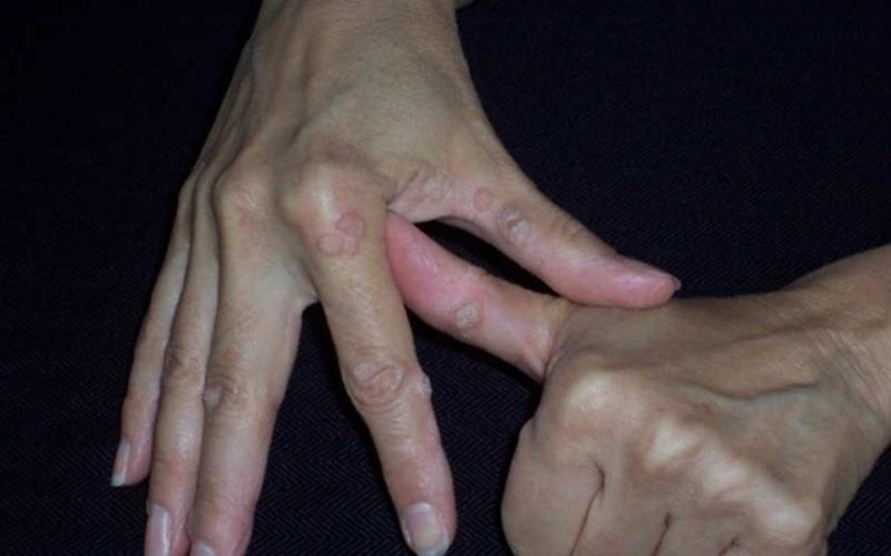Biểu hiện của mụn cóc ở tay là những nốt mụn sần sùi thô ráp