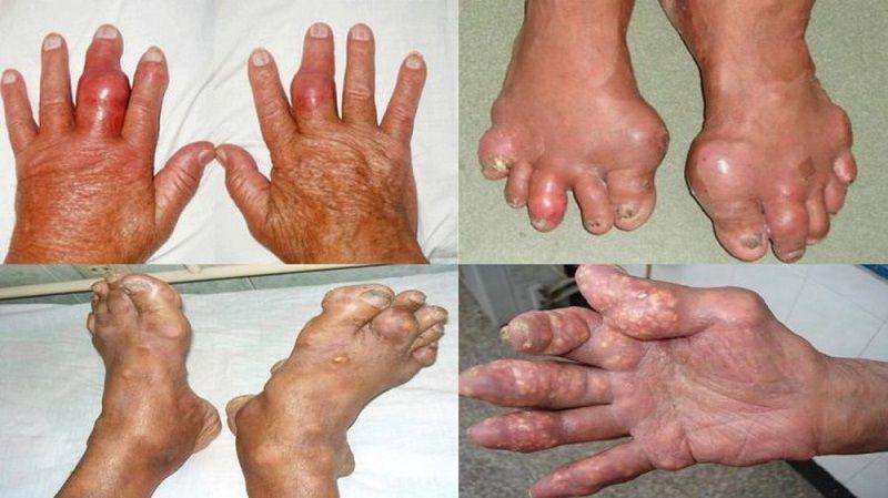 Các khối tophi xuất hiện là dấu hiệu bệnh gout mãn tính thường gặp