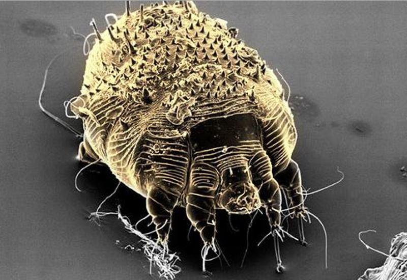 Hình ảnh cái ghẻ trên cơ thể con người