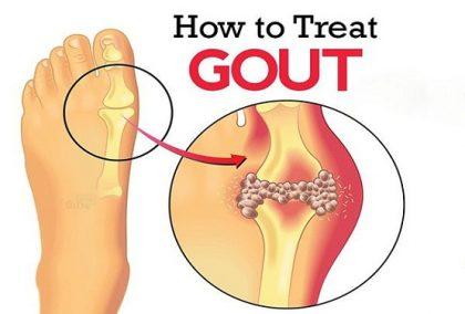 Chữa bệnh gout