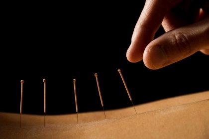 Chữa đau thần kinh tọa bằng châm cứu được chứng minh là an toàn và hiệu quả