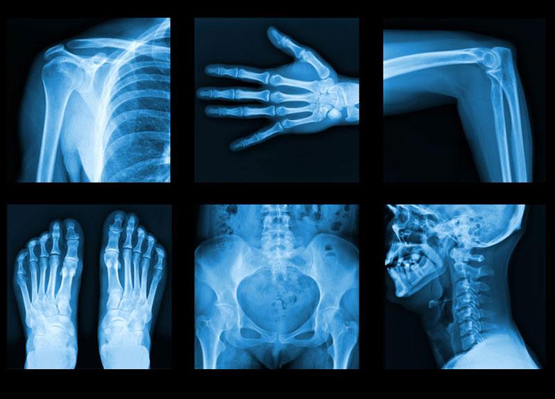 Chụp X quang khi mang thai 2 tuần sẽ không ảnh hưởng gì đến thai nhi