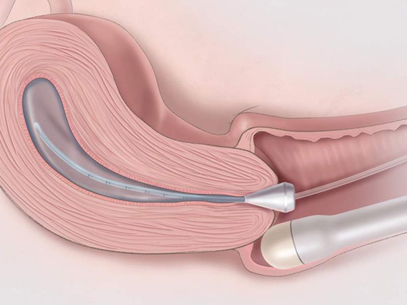 Có thai tháng đầu thường được siêu âm đầu dò