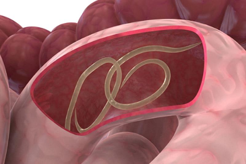Đau bụng khi mang thai có thể là dấu hiệu tấn công của ký sinh trùng