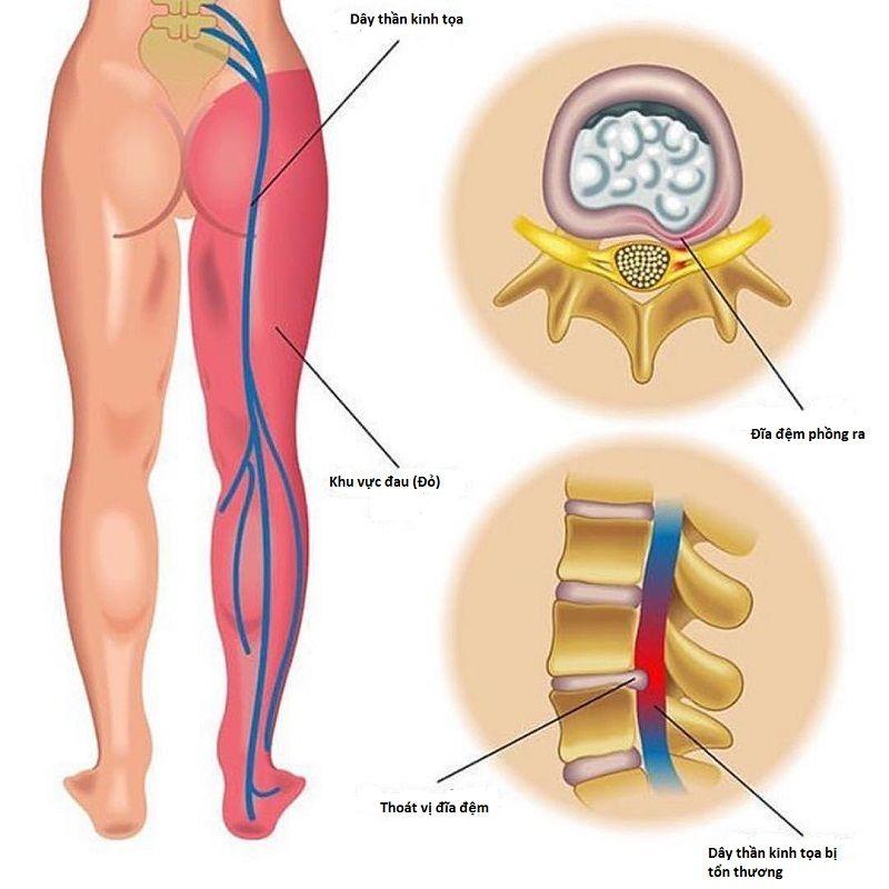 Dây thần kinh tọa bị tổn thương hoặc bị chèn ép khiến bạn bị đau thần kinh tọa