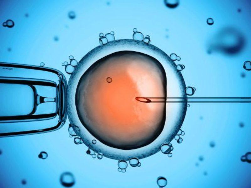 ICSI là gì: Là phương pháp điều trị vô sinh bằng cách bơm tinh trùng vào bào tương trứng