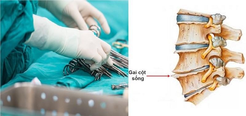 Khi nào cần phẫu thuật gai cột sống