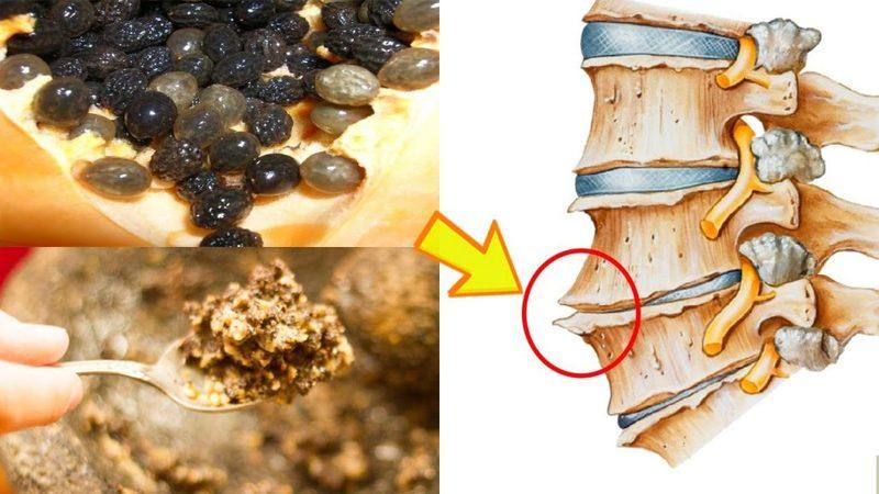 Lưu ý khi dùng hạt đu đủ trị gai cột sống