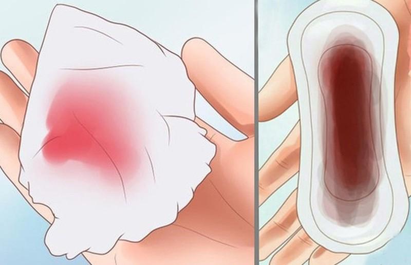 Mang thai ngoài tử cung máu ra ít hơn, nhưng kéo dài, đậm màu hơn