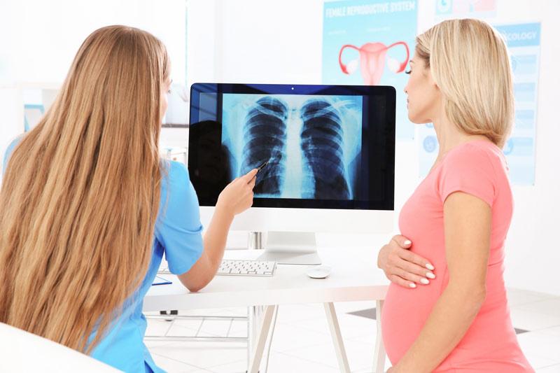 Mức độ ảnh hưởng của việc chụp X-quang đối với thai nhi còn tùy thuộc vào thời gian mẹ thực hiện hoạt động này