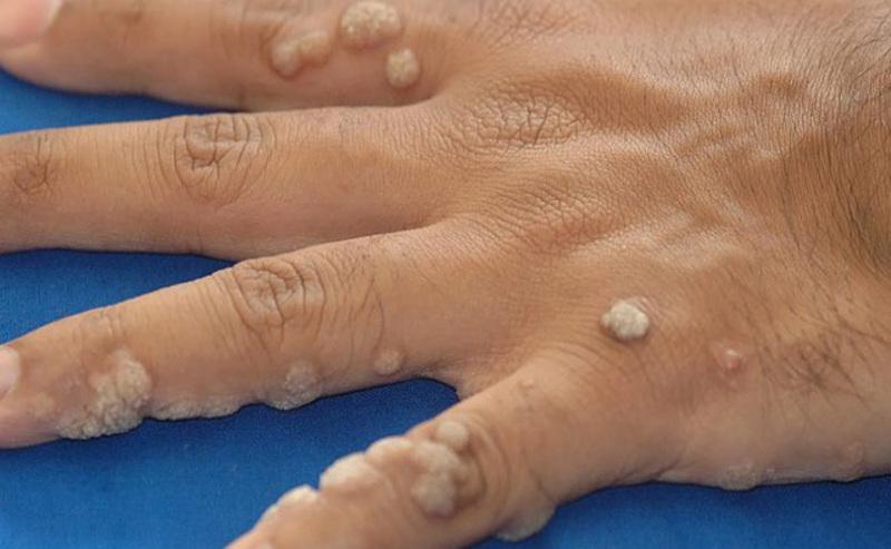 Mụn cóc ở ngón tay gây khó chịu cho người bệnh