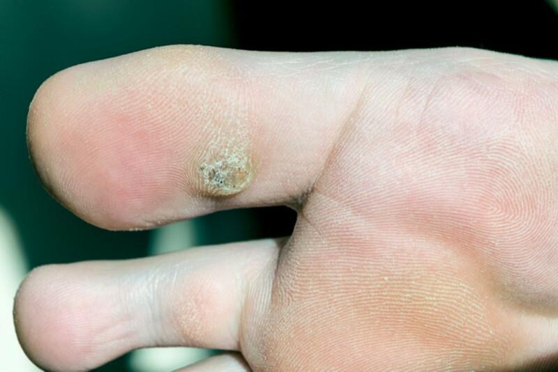 Mụn cóc xuất hiện do sự xâm hại của virus HPV