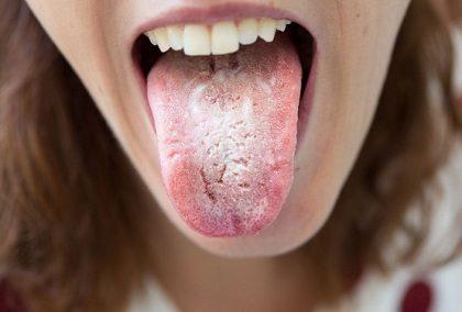 Nấm Candida ở miệng