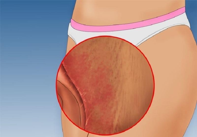Nấm Candida albicans có thể gây sưng đỏ, đau rát âm đạo