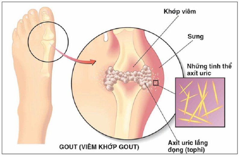 Ngón chân cái bị sưng nhức do bệnh gút