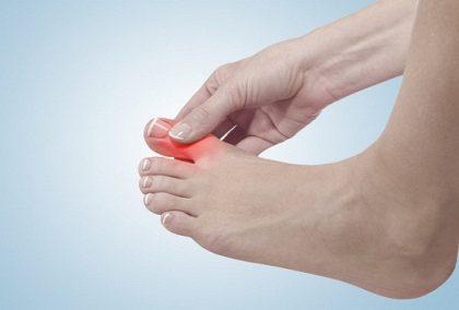 Ngón chân cái sưng nhức
