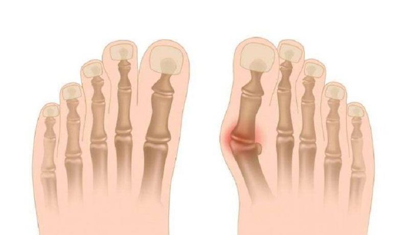 Ngón chân cái sưng nhức do ngón chân cái bị vẹo vào trong