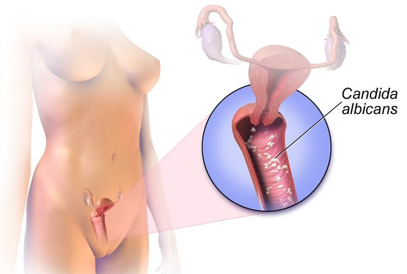 Nguyên nhân dẫn đến nấm Candida âm đạo là gì?