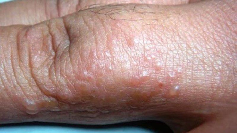 Những nốt mụn nước trên da là triệu chứng bệnh ghẻ rõ ràng nhất