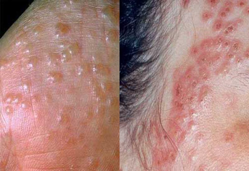 Nổi mẩn đỏ ngứa có thể là dấu hiệu của bệnh chàm